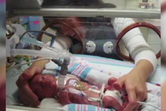 Medicii au spus ca nu va putea respira si ca este mut. Cum i-au schimbat operatiile soarta unui baietel din SUA