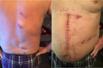 Un barbat de 56 de ani a fost injunghiat de 10 ori, pe strada, iar incidentul a fost filmat. Urmarile atacului