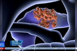 Pancreasul, prima victimă a exceselor alimentare. Cum ajunge să