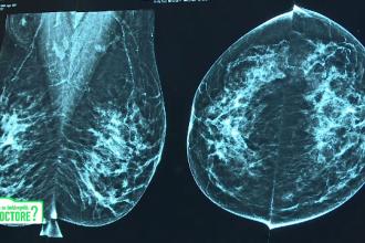 De ce sunt importante vizitele la ginecolog chiar și după instalarea pre-menopauzei. Explicația medicilor