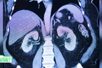 Poluarea are impact direct şi sever asupra rinichilor. Care sunt cele mai mari riscuri