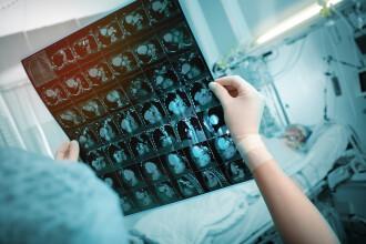 Efecte pe termen lung ale COVID-19. De ce unii oameni au simptome persistente, chiar și după ce au trecut prin boală?