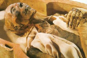 Pacient cu totul special! Mumie la tomograf!