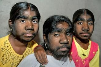 """Mutatia genetica de care sufera numai 1 din 1 MILIARD de oameni. Sunt strigate """"Surorile varcolac"""