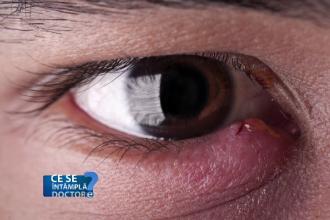 Netratata, o simpla umflatura a ochiului poate genera probleme de vedere. Principalele afectiuni ale pleoapelor