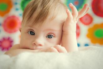 Copiii diagnosticati cu sindromul Down vor beneficia de insotitor. Anuntul facut de Ministerul Sanatatii