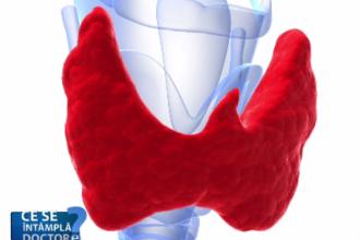 Analizele la tiroidă, necesare o dată pe an și în lipsa simptomelor