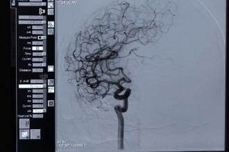 Intervenţie în premieră în România: o pacientă cu 7 anevrisme cerebrale a primit o nouă șansă la viață