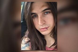 Un tânăr a murit după ce țigara electronică i-a explodat în față. Ce a arătat autopsia