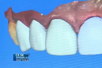 Problemele grave pe care le ascunde sângerarea gingivală. Sunt recomandate controale