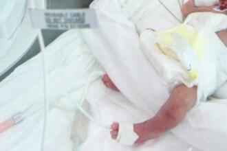Bebelusul externat cu piciorul rupt a suferit fractura in spital!