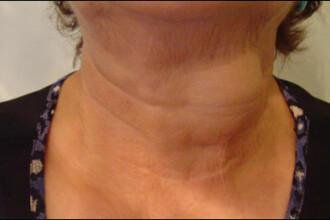 95% din cancerele tiroidiene sunt calificate drept noduli!