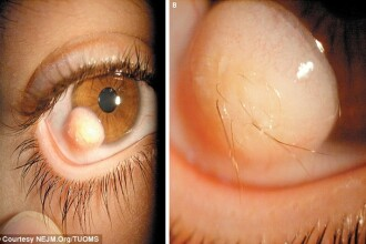 Medicii, uimiti de ce i-a crescut unui tanar pe globul ocular.