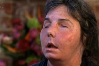 Povestea femeii atacate cu detergent industrial de sotul ei. A avut nevoie de un transplant de fata