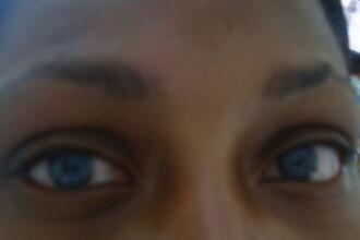 Cosmarul trait de o studenta care a vrut sa-si schimbe permanent culoarea ochilor
