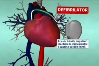 Romania vrea sa opreasca moartea subita. In ce conditii primesti un implant de defibrilator cardiac pe bani de la stat