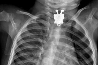 Radiografia zambitoare realizata in corpul unui copil. Ce inghitise micutul