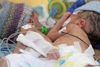 Premiera medicala in Elvetia. Doua surori siameze au fost separate cu succes la doar 8 zile de la nastere. Cum arata acum