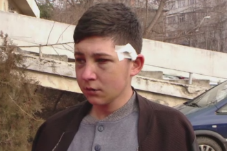 Baiat de 18 ani, din Botosani, batut crunt la o petrecere de un alt tanar. Cearta a inceput de la iubita agresorului