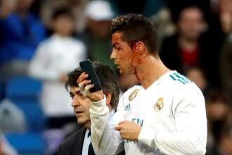 Glume pe seama lui Cristiano Ronaldo după ce și-a verificat rana de la cap cu telefonul