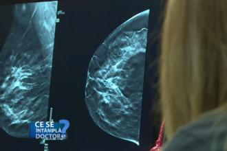 CSID. Când se aplică tratament în cazul formațiunilor benigne la nivelul sânului