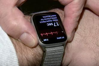 Un ceas inteligent i-a salvat viața unui bărbat. Problema de care nici medicii nu știau