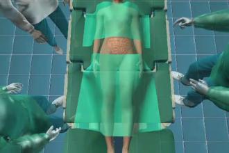 ANIMAȚIE GRAFICĂ. Pansament uitat de medici în abdomenul pacientei. Cum a fost descoperit