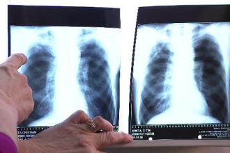Bolnavii de tuberculoză vor fi tratați ambulatoriu. Care sunt simptomele afecțiunii