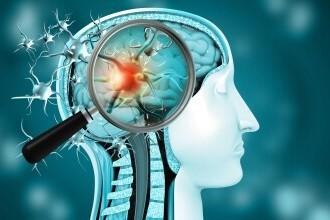 Afecțiunile neurologice ce pot apărea la pacienții care au fost infectați cu COVID. Explicațiile neurologului Dan Filip