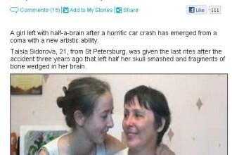 Caz unic: si-a pierdut jumatate de creier, dar a castigat un talent uluitor