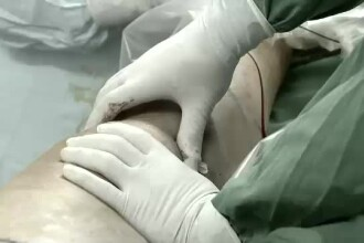 Un chirurg şi-a scris iniţialele cu laser pe ficatul pacienţilor pe care i-a operat