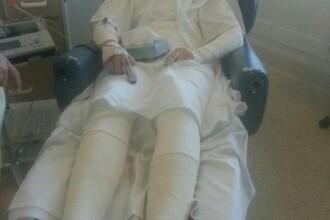 Reactia alergica la un medicament a transformat-o intr-o mumie. Cum arata tanara de 19 ani inainte de boala