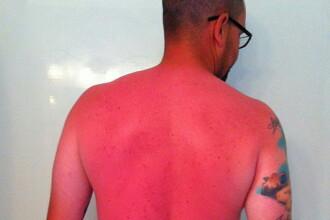 Arsurile teribile cu care s-a ales un barbat dupa o zi de plaja, fara crema de protectie solara. Poza devenita viral