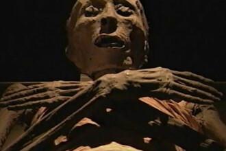Studiul unei mumii arata ca in Egiptul Antic se practicau operatii ortopedice de genul celor din prezent