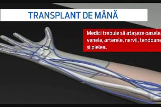 Primul transplant de mana din Romania se va face la Cluj. In intreaga lume, doar 70 de oameni au trecut prin aceasta operatie