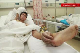 Operatie uluitoare in China. Motivul pentru care medicii i-au transplantat unui barbat mana pe picior