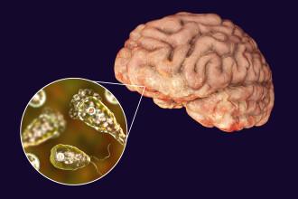 Caz rar în SUA. O amibă care distruge creierul, descoperită la un pacient din Florida