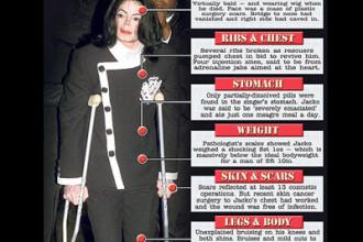 Michael Jackson: Detalii SOCANTE ale autopsiei starului!!!
