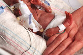 Bebelus cat un creion. Nascut prematur, un baietel a uimit lumea medicala