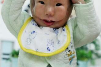 Caz extrem de rar! S-a nascut cu o masca din propria piele pe fata