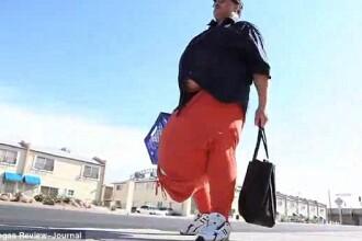 Nu vrea sa scape, gratuit, de povara de 45 kg din pantaloni. Operatia costa 1 milion de dolari