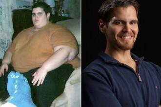 Nu lăsa obezitatea să-ţi umbrească viaţa! | roera.ro