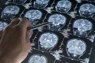 Ce au gasit medicii in creierul unei femei care manca broaste vii in copilarie. Timp de sase ani s-a plans de dureri de cap