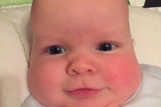 Forma capului bebelusului ei a alertat-o si a mers la control. Diagnosticul medicilor a ingrozit-o