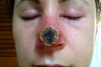 A folosit un remediu natural pentru a scapa de cancerul de piele, dar rezultatele sunt infioratoare. Cum arata acum. FOTO
