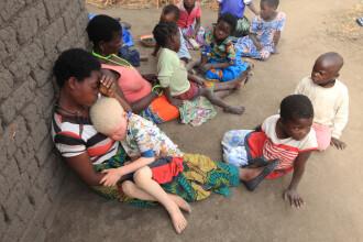Autoritatile din Malawi, in alerta. Motivul pentru care acestei mame ii este frica sa ii mai dea drumul din brate fiului ei