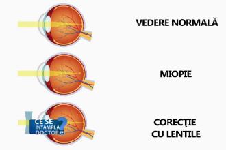 Dacă ați fost diagnosticați cu miopie, testați-vă și pentru glaucom