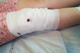 Fetiță de 10 ani, din Mediaș, mutilată de maidanezul pe care a vrut să-l hrănească
