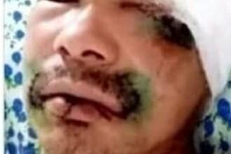 Mărturia unui bărbat desfigurat de urs. Gestul șocant care l-a salvat de la moarte. FOTO
