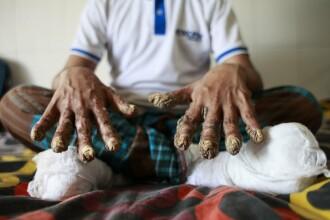 Un bărbat le-a cerut medicilor să-i taie mâinile, ca să poată dormi. Boala de care suferă